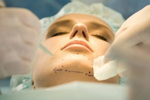 ניתוח סנטר כפול